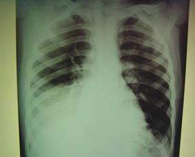 ДЕСТРУКТИВНАЯ ПНЕВМОНИЯ У ДЕТЕЙ РАННЕГО ВОЗРАСТА  гипертермия на 8 е сутки заболевания с клинико рентгенологической картиной правосторонней нижнедолевой пневмонии осложненной пиофибринотораксом рис